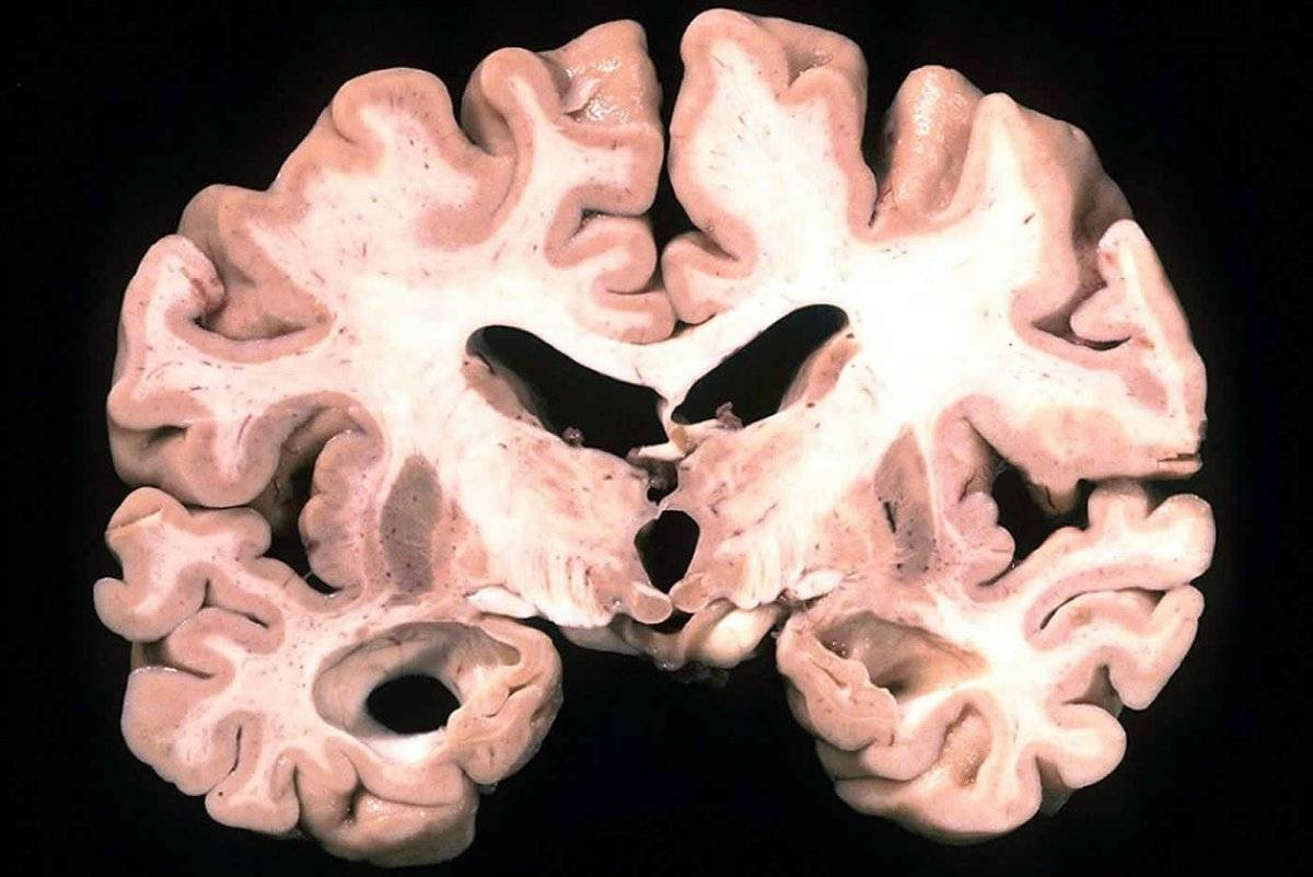 Старческое слабоумие - лечение, симптомы, препараты, профилактика