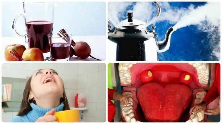 Алкоголь при ангине: можно ли пить, помогает ли