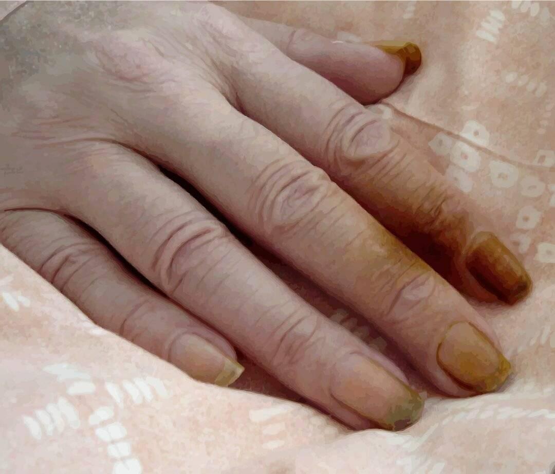 7 простых способов отбелить желтые ногти в домашних условиях