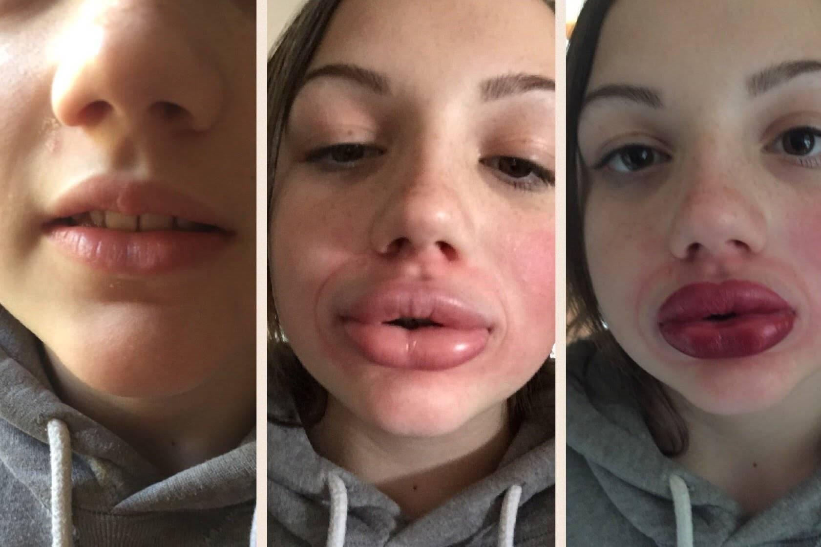 Что нельзя делать после увеличения губ: последствия процедуры, уход, фото до и после