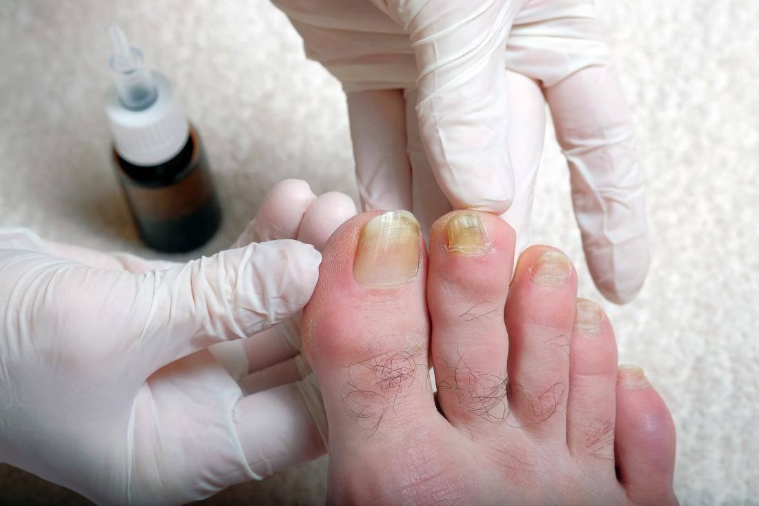 Как очистить пятна от никотина на пальцах