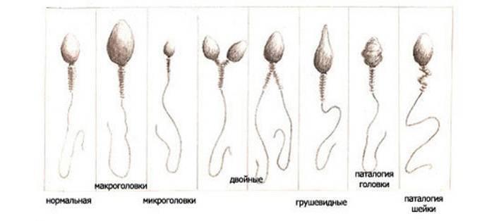 Как алкоголь может влиять на результаты спермограммы и качество спермы