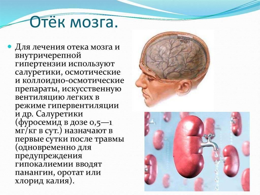 Отек головного мозга при алкоголизме: симптомы, последствия