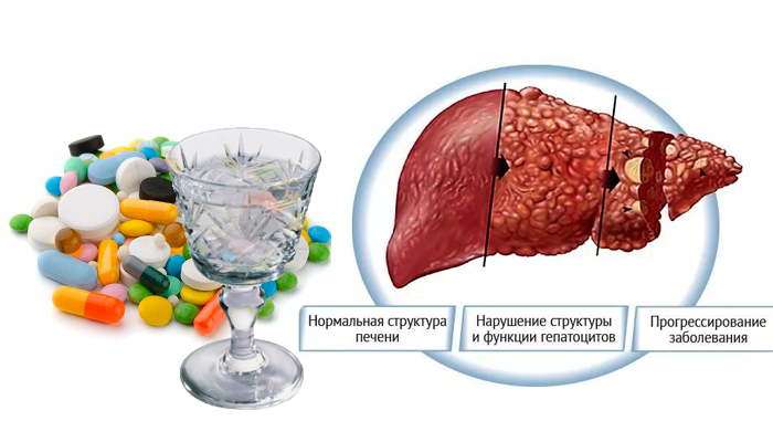 Антибиотики и алкоголь можно ли совмещать
