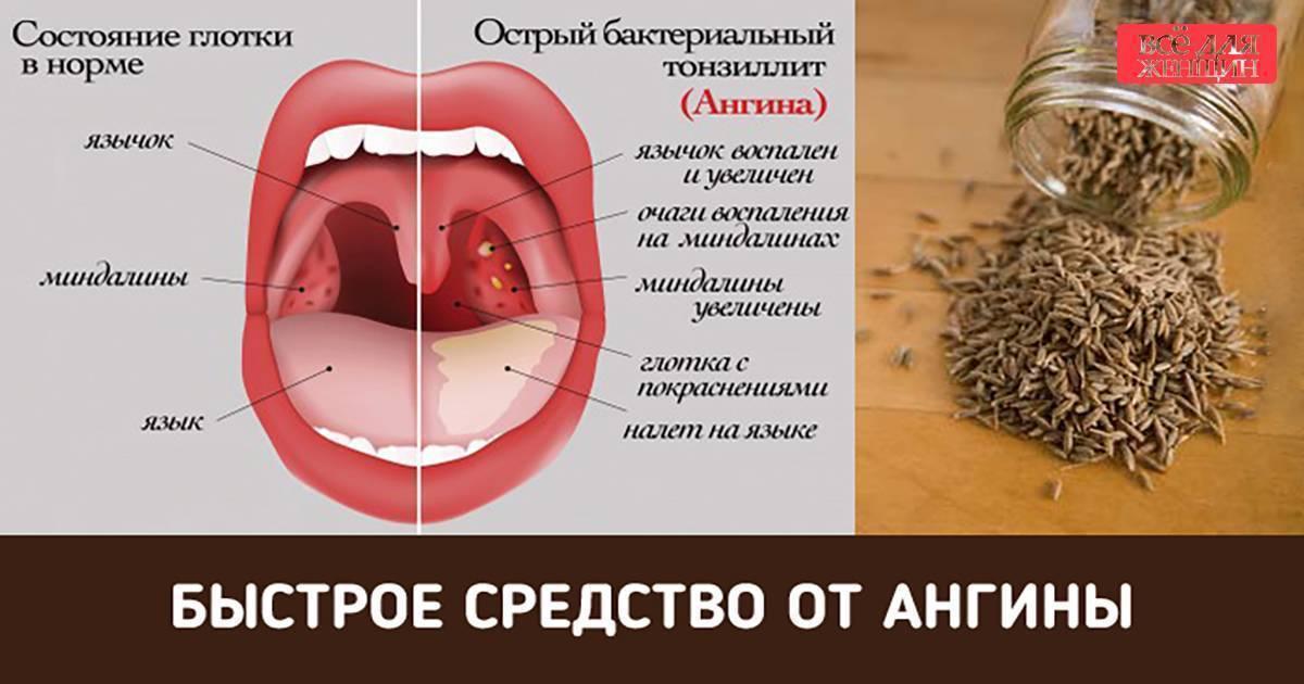 Препараты от ожога горла. медикаментозное и народное лечение ожога слизистой горла