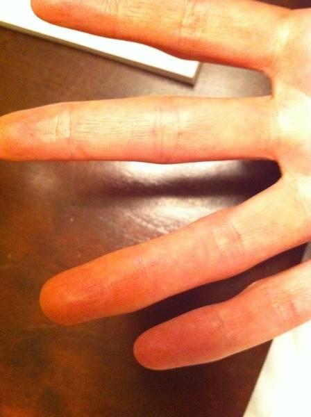 7 способов избавиться от желтизны и отбелить ногти в домашних условиях