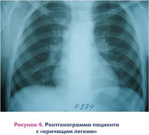 Рентген грудной клетки здорового человека фото