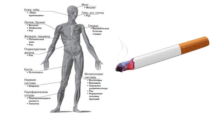 Могут ли болеть почки из-за курения: все о влиянии сигарет на этот орган