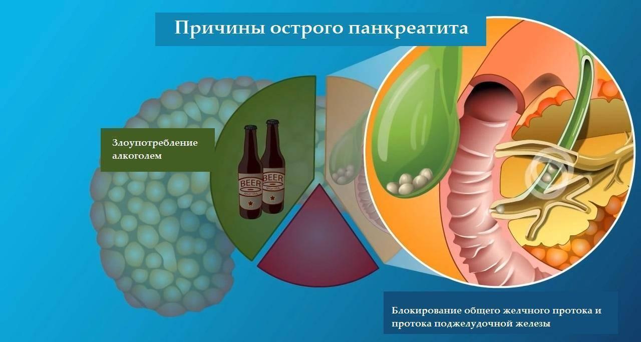 Можно или нельзя пить алкоголь при панкреатите — последствия и отзывы