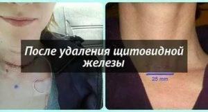 Что нельзя делать после операции на щитовидке   pro shchitovidku