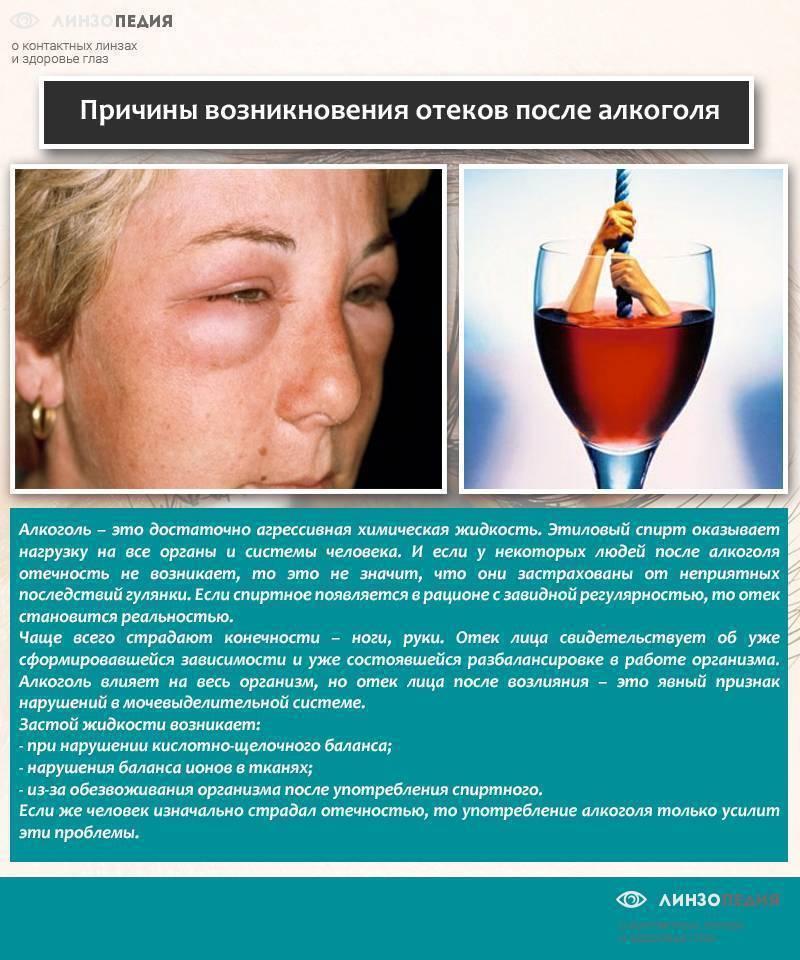 Болят ноги после приема алкоголя: причины
