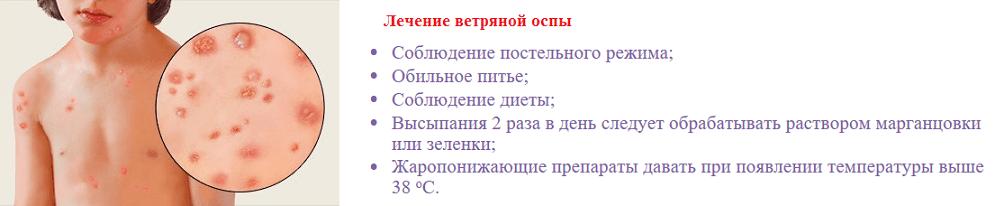 Что можно при ветрянке и чего нельзя делать? | pro-herpes.ru