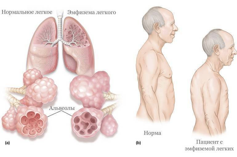 Рак легких: симптомы и диагностика