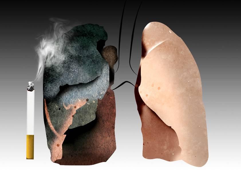 Болезни от курения: к каким болезням приводит курение, симптомы, признаки заболевания легких, список
