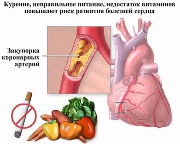 Диета при стенокардии: правила питания, выбор продуктов, меню, рецепты