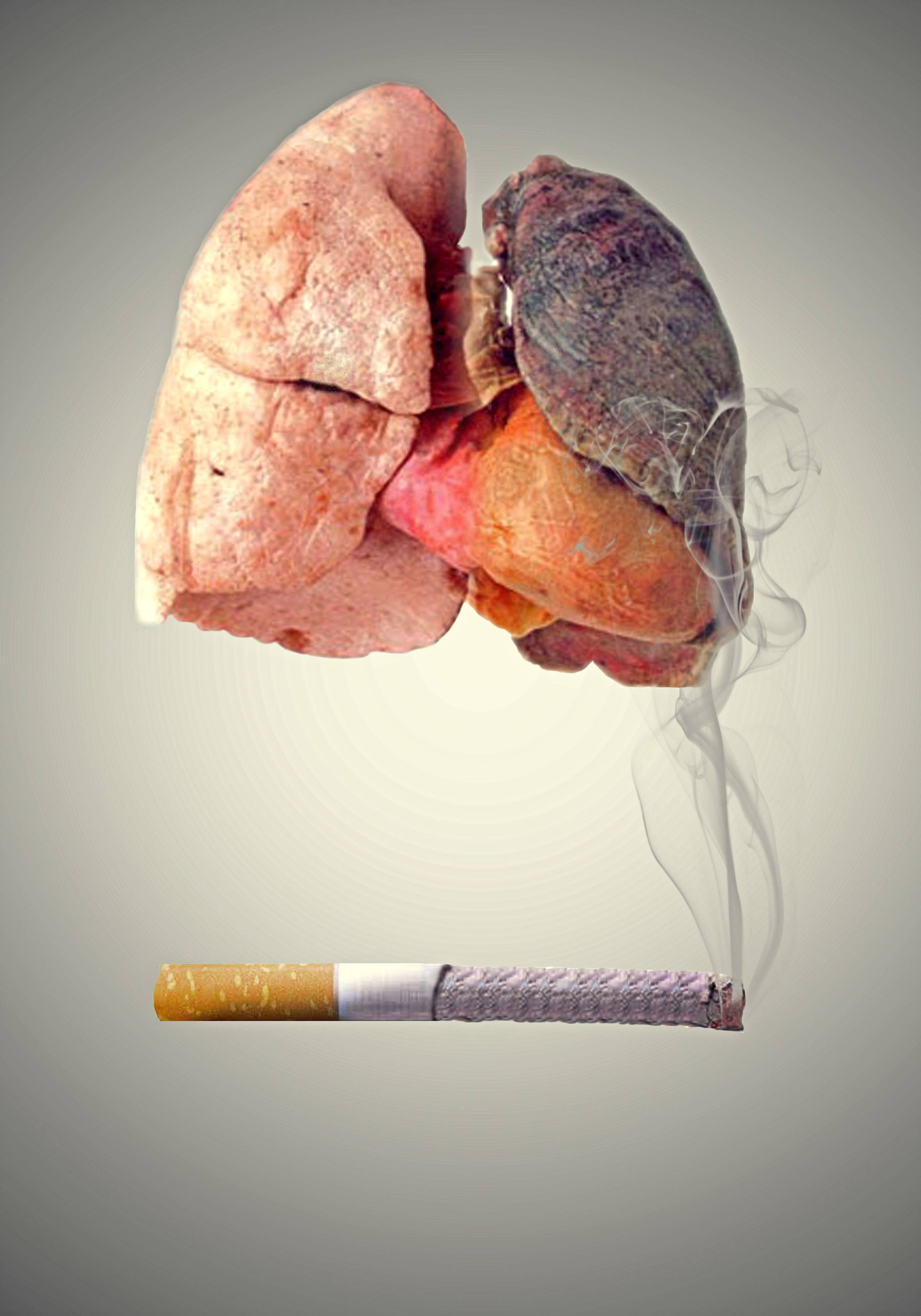 Последствия курения для печени человека