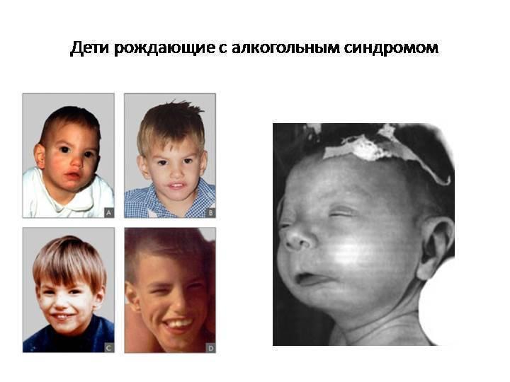 Дети рожденные у алкоголиков синдром