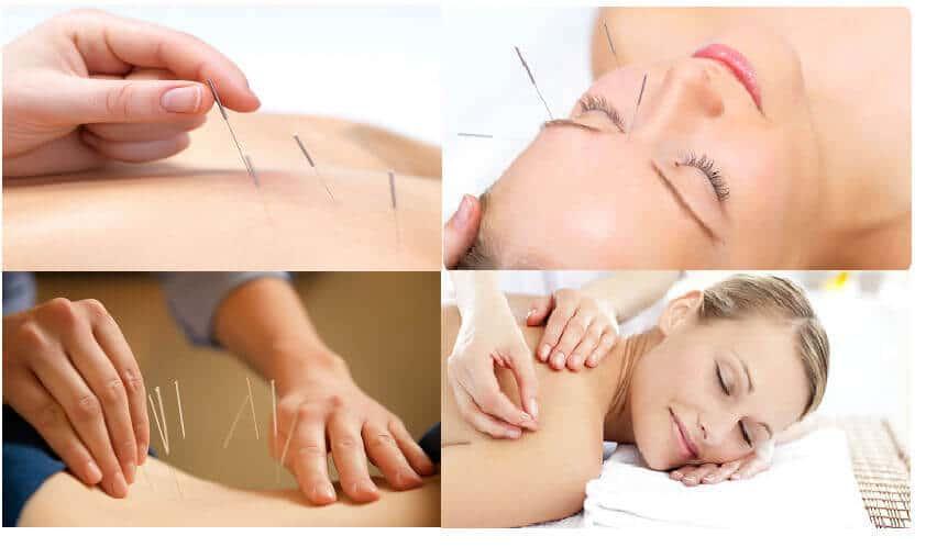 Иглоукалывание: все о лечении иголками, польза и вред, отзывы
