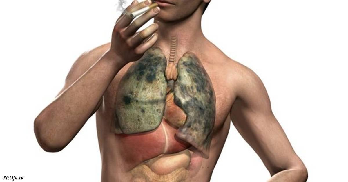 Можно ли курить при бронхите: возможные последствия, осложнения, влияние на болезнь