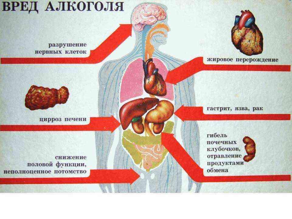 Отравление и интоксикация головного мозга — причины и последствия отравления