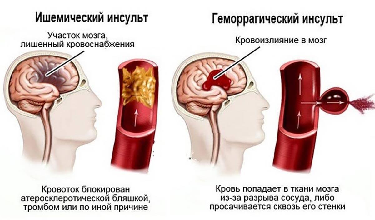 Последствия инсульта: чем грозит человеку инсульт головного мозга?