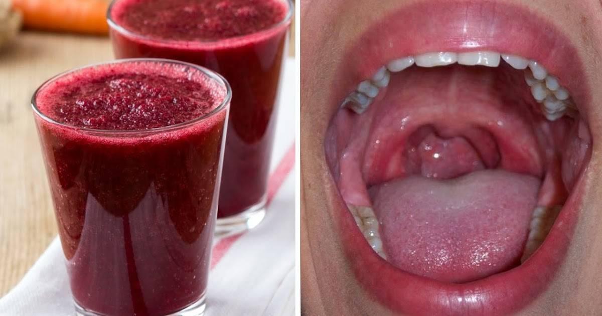 Можно ли при ангине пить алкоголь, как полоскать горло водкой и помогает ли горячее вино. можно ли при ангине проводить полоскание горла водкой полоскание горла водкой