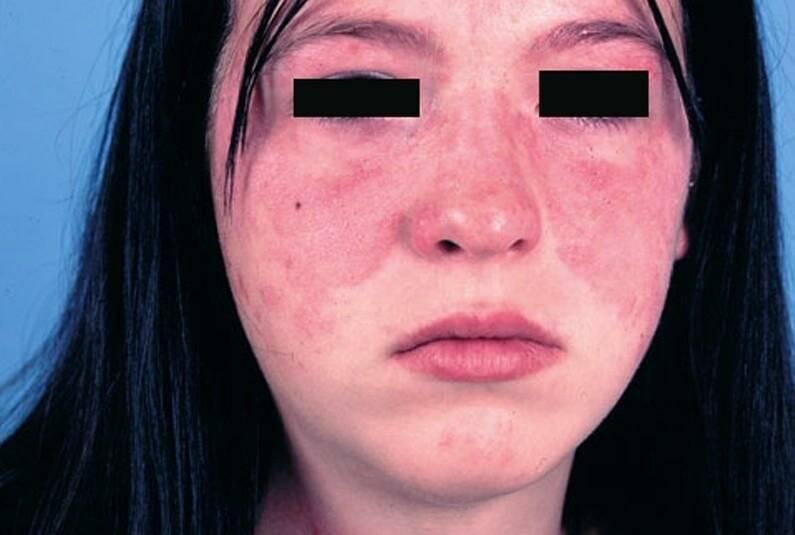Прыщи после 50 лет у женщин - что это, на лице, причины, лечение, что делать, щитовидка