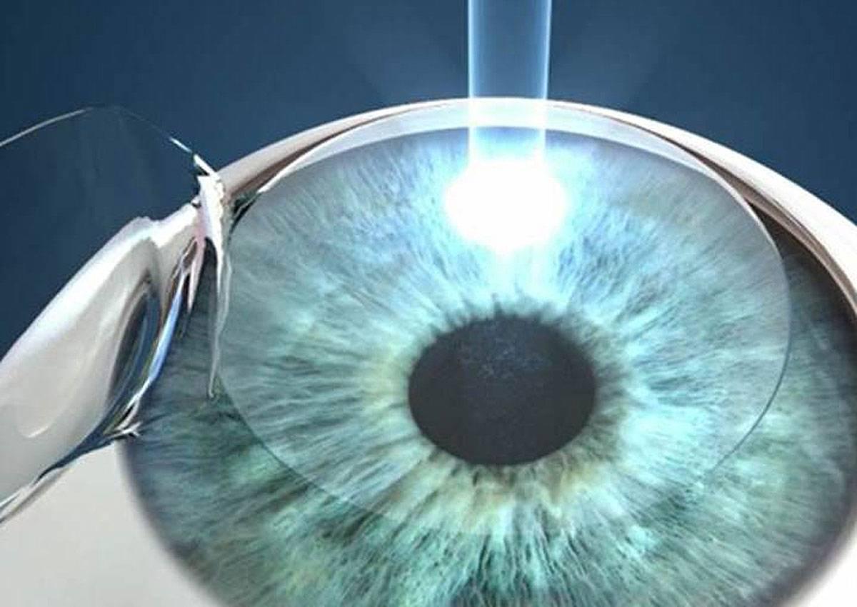 Рекомендации врача: восстановление после лазерной коррекции зрения