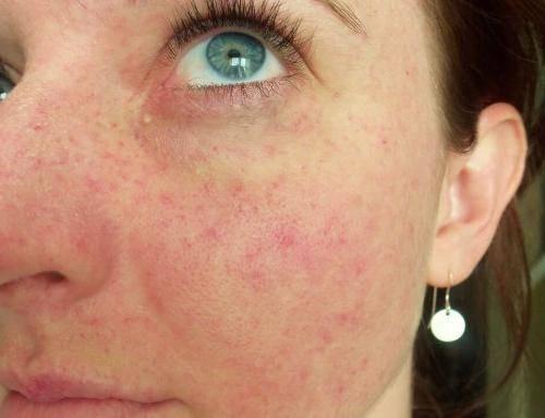Почему после алкоголя на лице появляются пятна? | болезни кожи