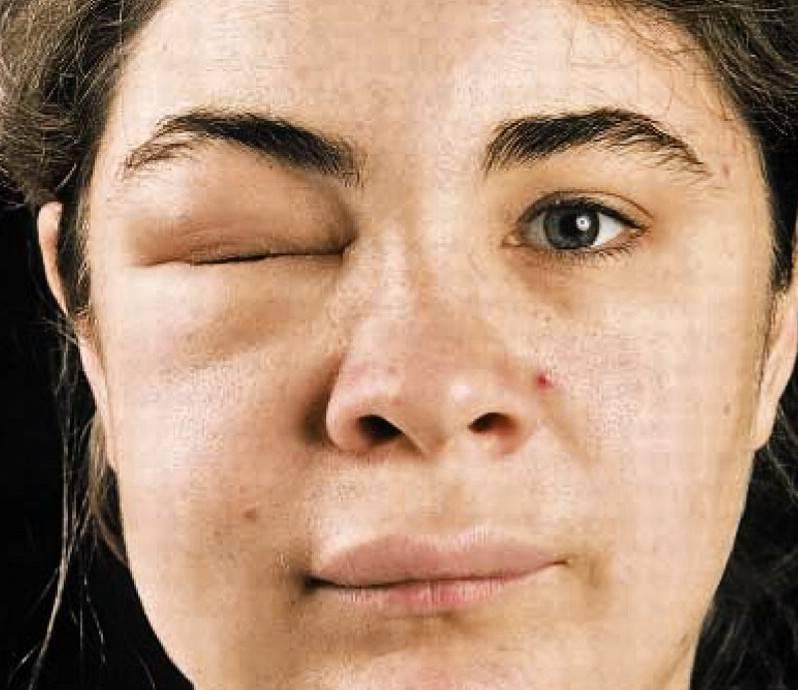 Причины одутловатости лица: как убрать, лечение отеков