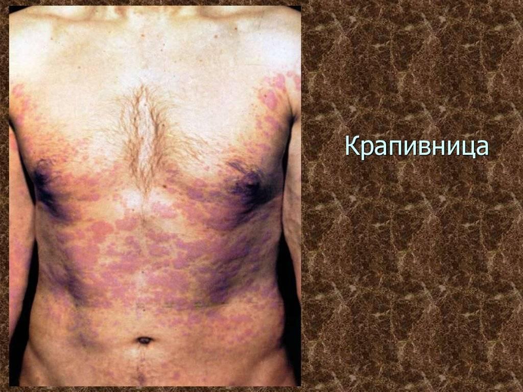 Хроническая крапивница: описание, причины развития заболевания, лечение