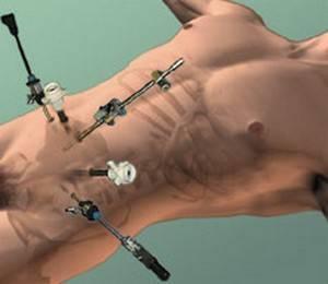 Лапароскопия маточных труб - операция и послеоперационный период, магнитотерапия, диета, стимуляция - статьи эко-блог    эко-блог