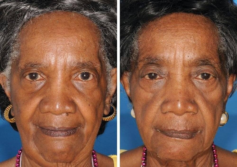Лицо после курения: что происходит с кожей и чем ее восстановить