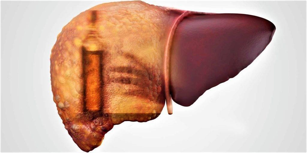Алкогольный гепатоз: симптомы и лечение