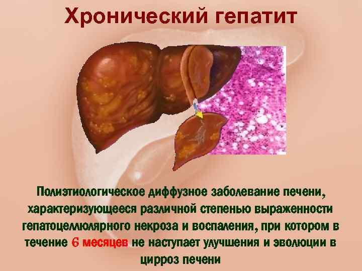 Профилактика болезней печени: как сберечь здоровье главного фильтра организма