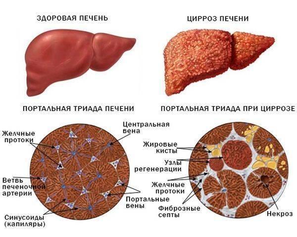 Ливерная колбаса: чем полезна и чем вредна | польза и вред