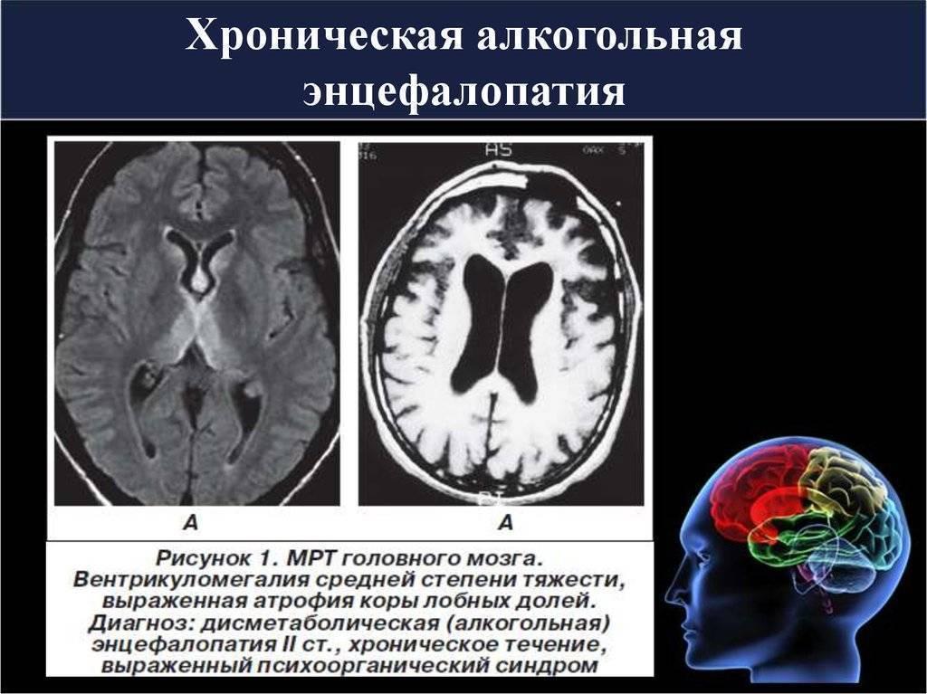 Алкогольная энцефалопатия - причины необратимых изменений головного мозга