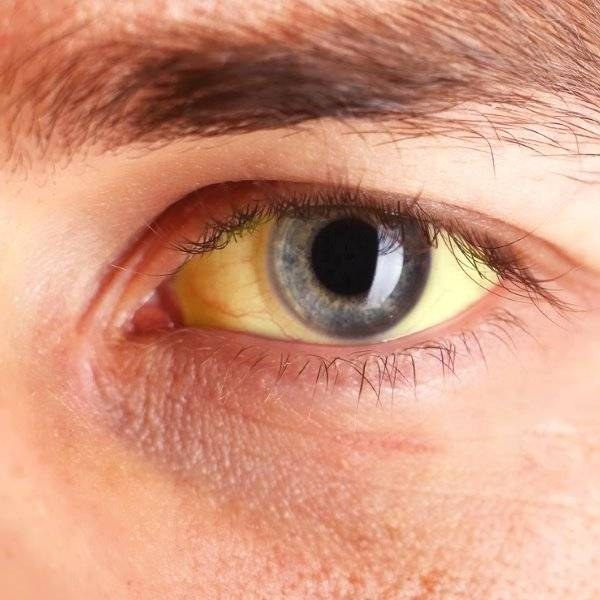 Желтые белки глаз у человека: причины