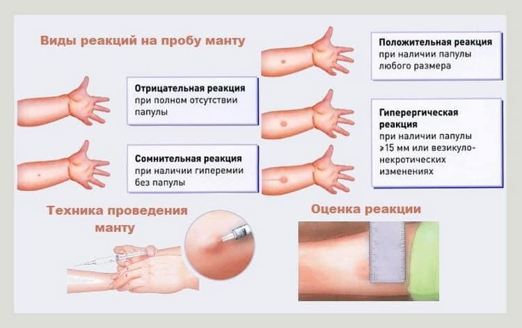 Можно ли мочить манту и почему, что будет, если это сделать, через сколько дней разрешено купаться? | konstruktor-diety.ru