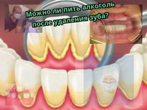 Можно ли пить спиртное после удаления зуба — зубы