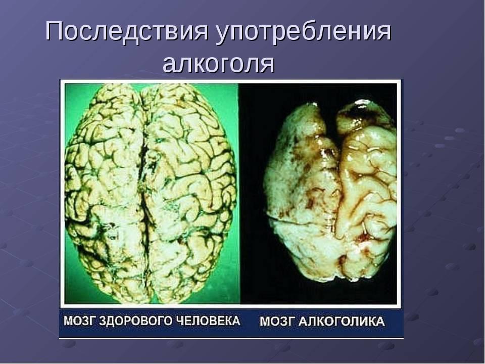 Восстанавливается ли мозг после отказа от алкоголя: что происходит в организме? - alko block 24