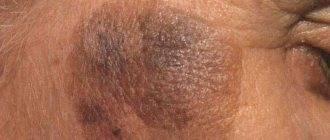 Кожный зуд при заболеваниях печени. что делать, если чешется кожа?