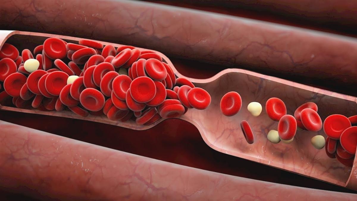 Как алкоголь действует на кровь — сгущает или разжижает?
