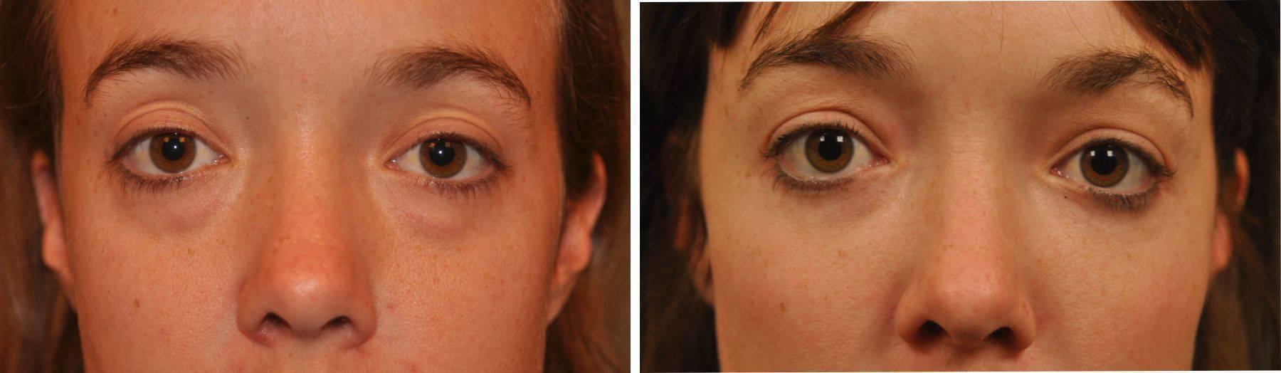 Как снять отечность лица после пьянки: убрать мешки под глазами и освежить лицо