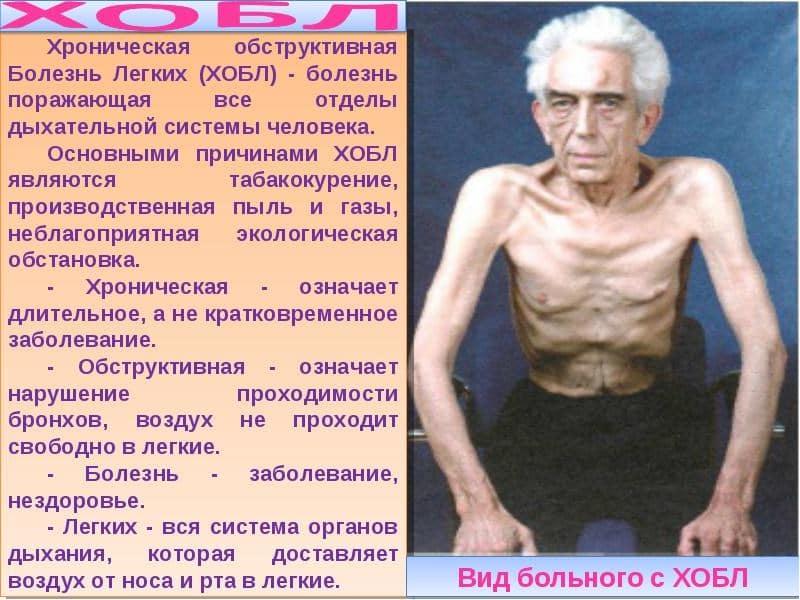Симптомы бронхита курильщика острой и хронической формы у взрослых