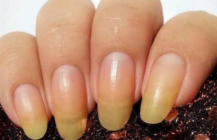 Желтизна на пальцах от сигарет: как ее убрать