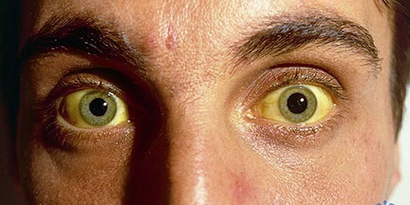 Желтый цвет лица: причины, что делать. желтые белки глаз – причины и лечение если желтые глаза и кожа
