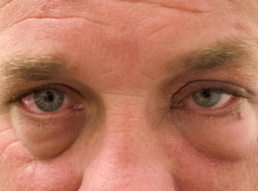 Отеки на лице. мешки под глазами, причины и лечение :: polismed.com