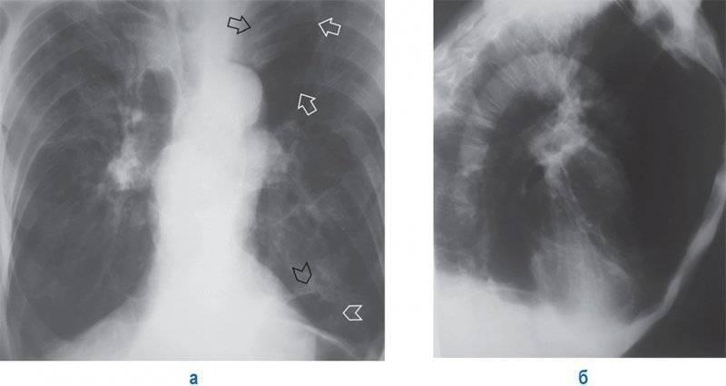 Все о хобл (хронической обструктивной болезни легких): симптомы, стадии, способы лечения