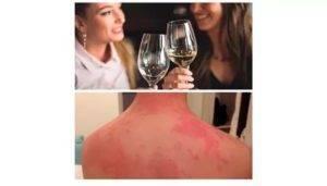 Аллергия на алкоголь: красные пятна, симптомы, лечение, фото